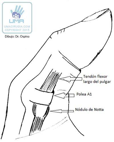 Tenosinovitis - UMA Cirugia